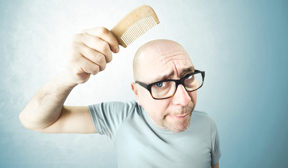 Have Scientists Found The Cure To Male Pattern Baldness?